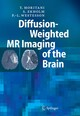 Diffusion-Weighted MR Imaging of the Brain